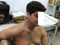 Lésions au niveau de la face, du cou et du thorax, environ 30 minutes après l'incident