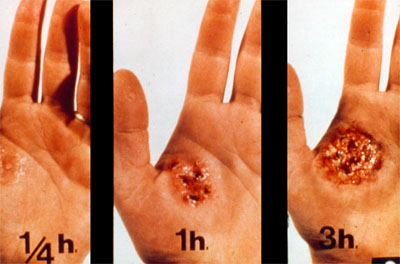 Simulation of the evolution of an injury caused by chemicals on a 3 hours period.