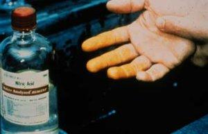 Acid Nitric on hand
