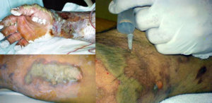 Burns treated with hexafluorine solution from Prevor
