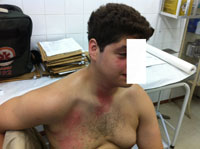 Verätzungen im Gesicht, am Hals und Oberkörper ca. 30 Minuten nach dem Unfall