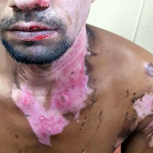 Quemadura química en la piel